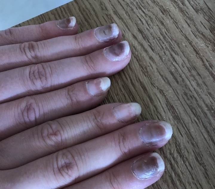 My friend's fingers 48 hours post second Pfizer jab. She's only 28 and scared. - The 2nd NEWS